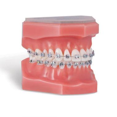 Traitements multi-attaches par l'orthodontiste Grégoire Renaud à Besançon.